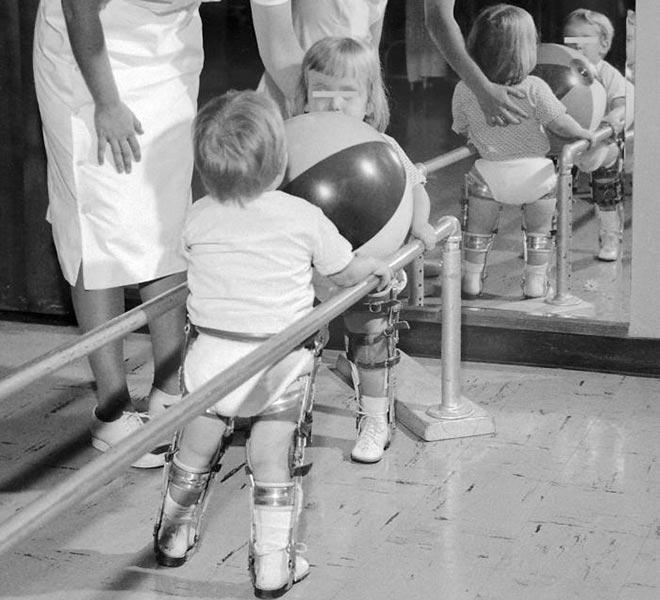 poliomielita