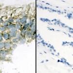 Virusul leucemic bovin și cancerul mamar