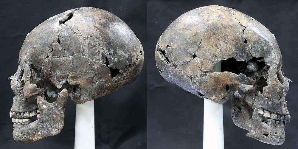 craniu alungit