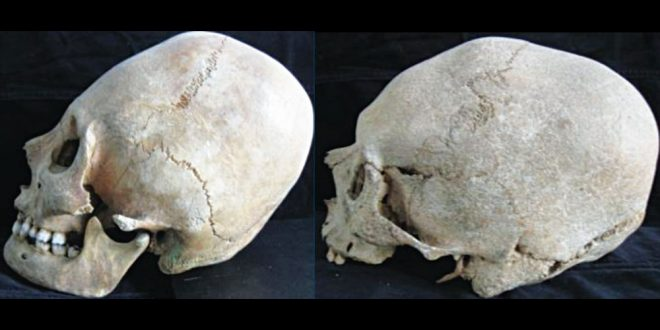 Cranii alungite Pogorasti